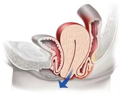 Стоимость операции при опущении матки 1
