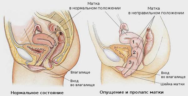 Что делать при опущении передней стенки матки