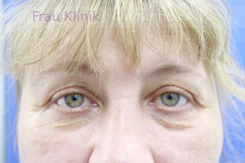 Подтяжка средней зоны лица и блефаропластика